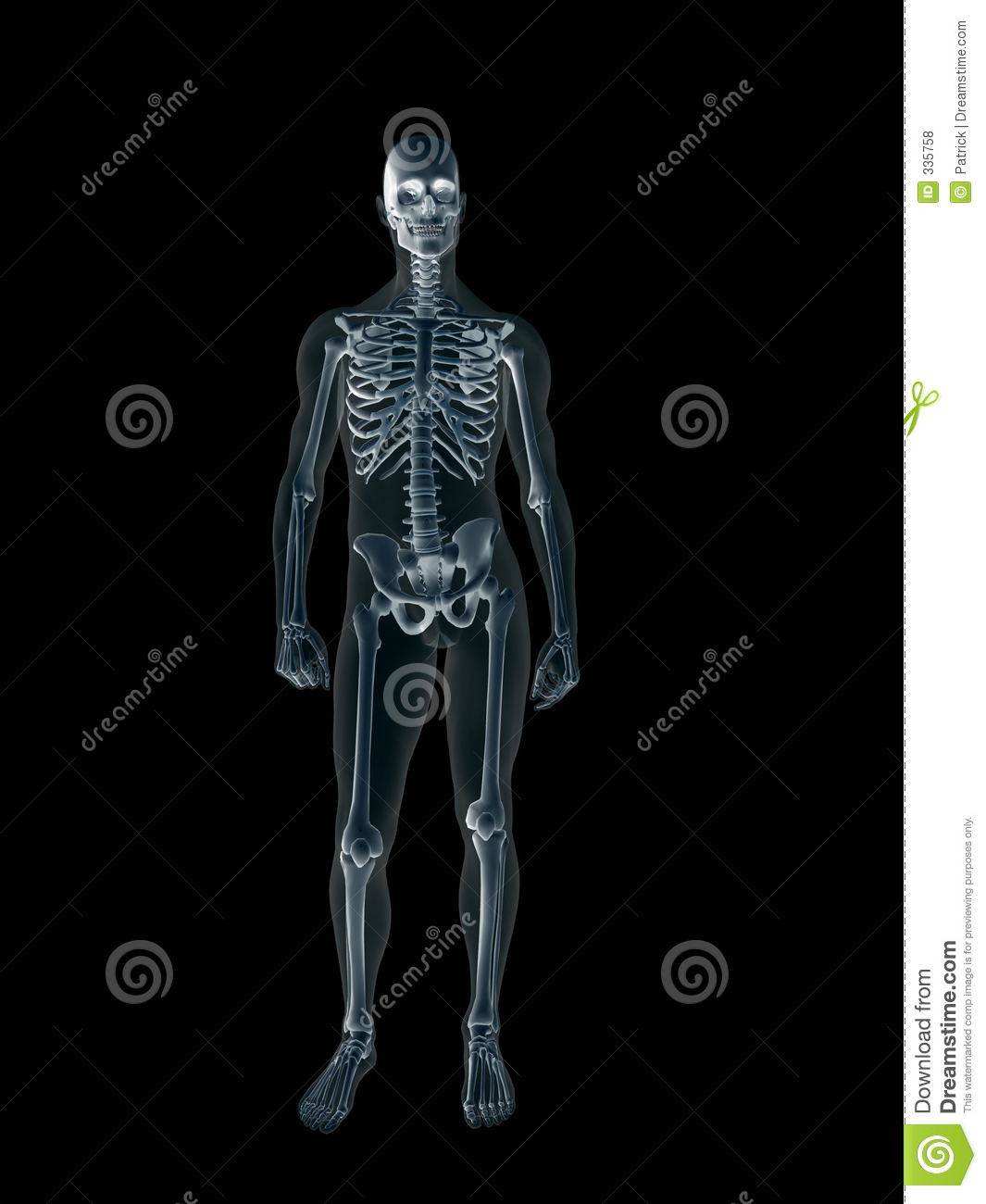 Xray, X-ray Of The Human Male Body. Royalty Free Stock Photos - Image ...