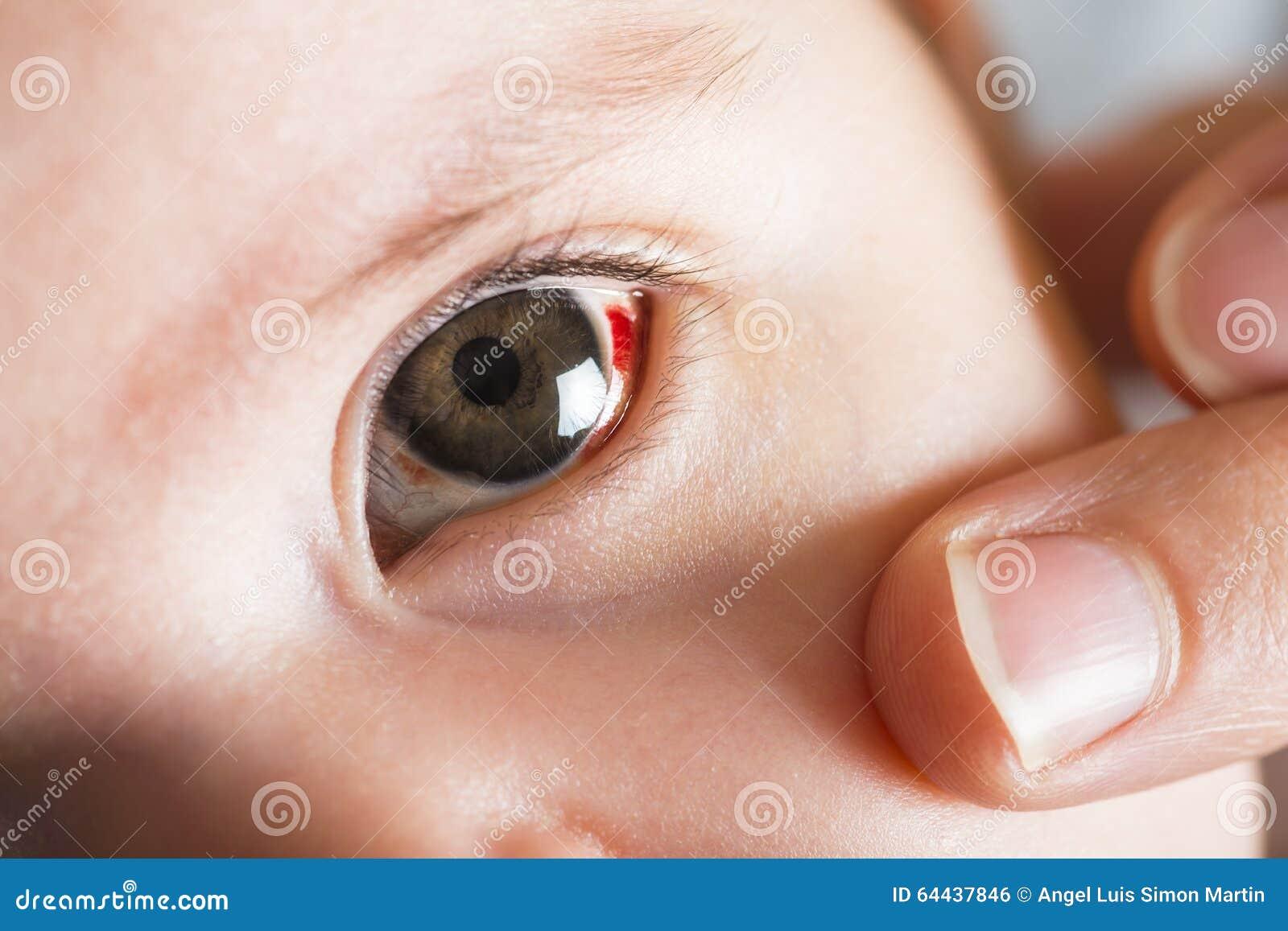 Yeux rouges de bloddshot photo stock image 64437846 for Interieur yeux rouge