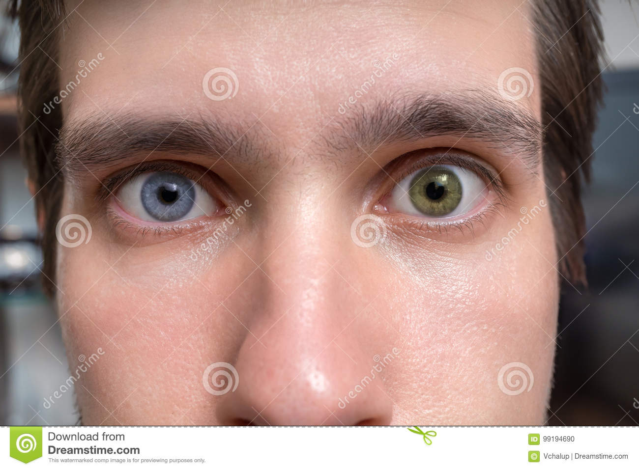 Young Man With Heterochromia - Two Different Colored Eyes ...
