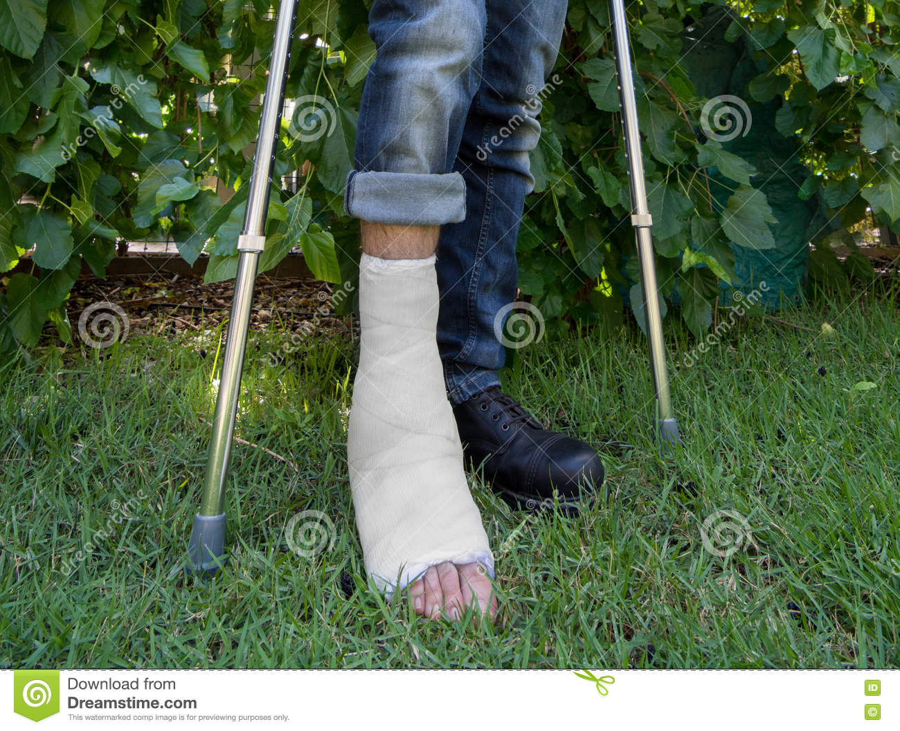 Young Man With A Leg Cast In A Garden Stock Photo - Image of male