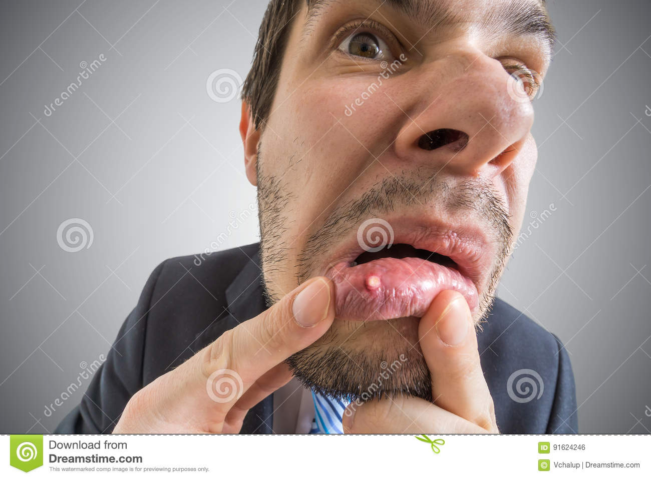 Young man is looking on ulcer or blister in his mouth in mirror