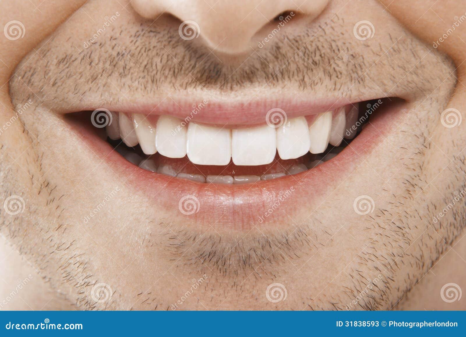 зубы perfect smile veneers накладные