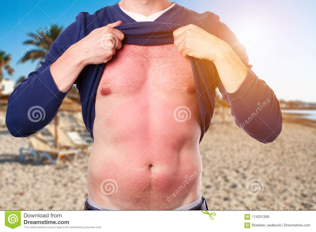 Man with sunburned skin from the sun on the beach