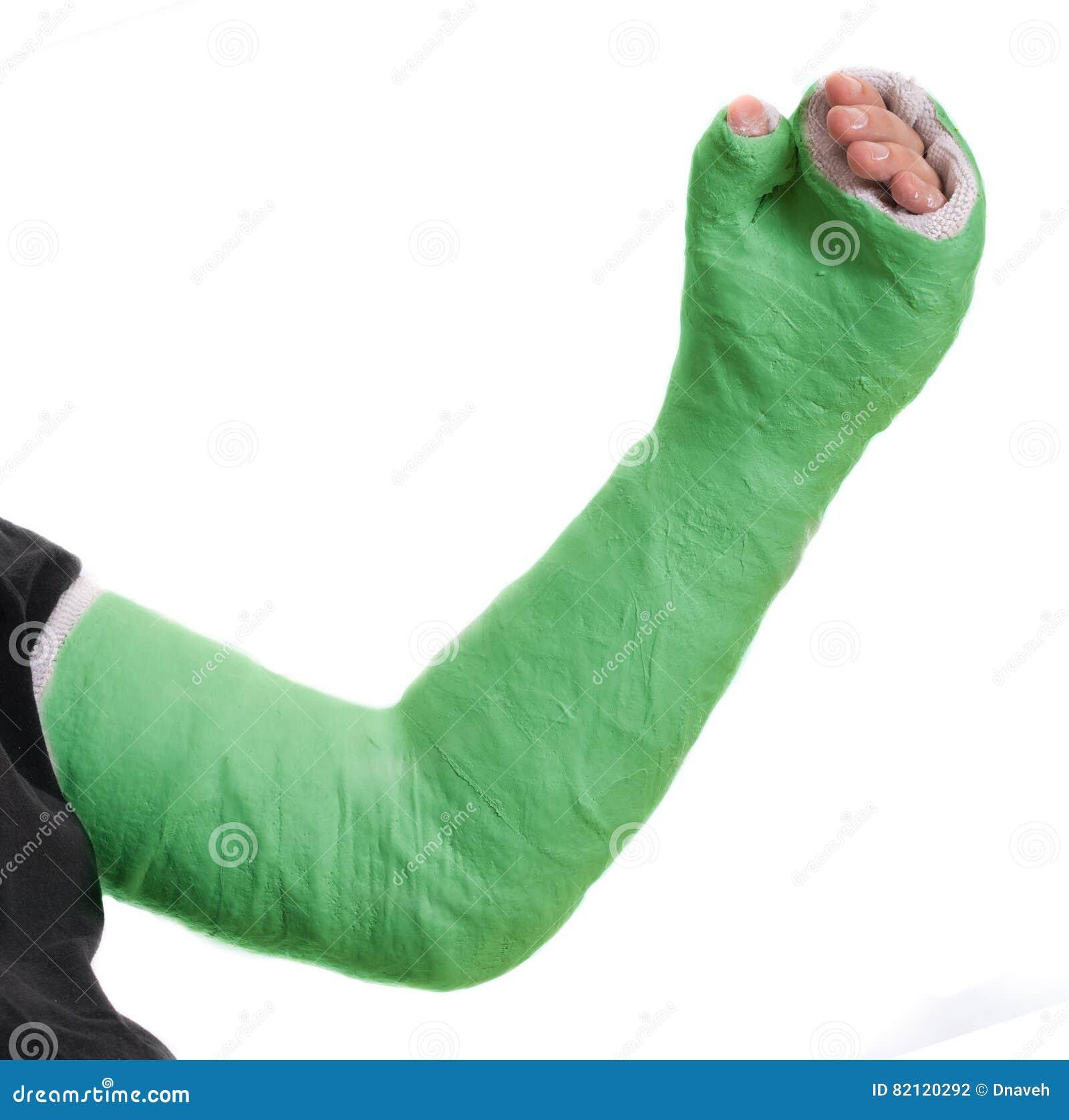 Fiberglass thumb spica cast