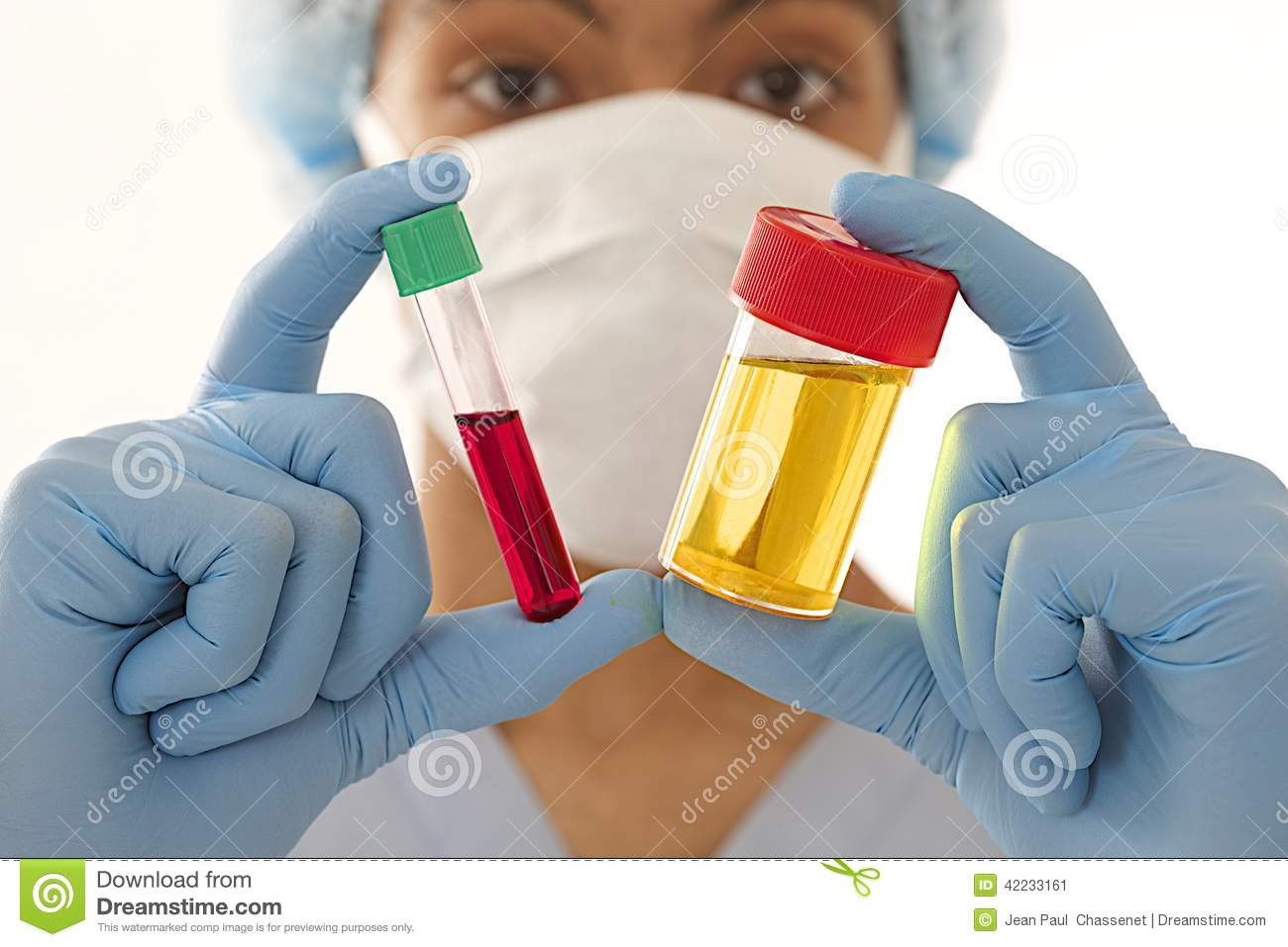 Young Mulatto Male Doctor Holding Both Urine And Blood ...