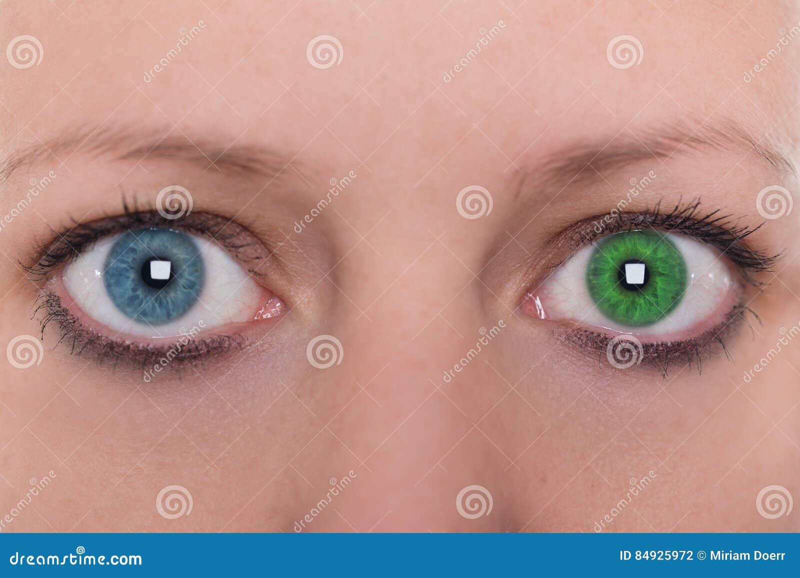 Young Woman With Heterochromia Iridum, Two Different Eye ...