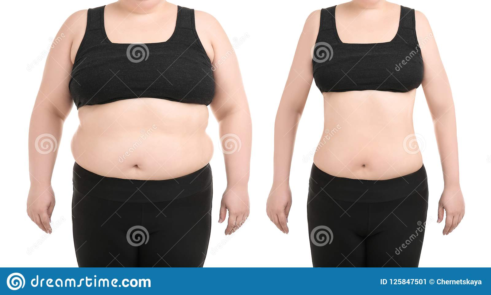 Young Woman Before And After Liposuction Operation Stock