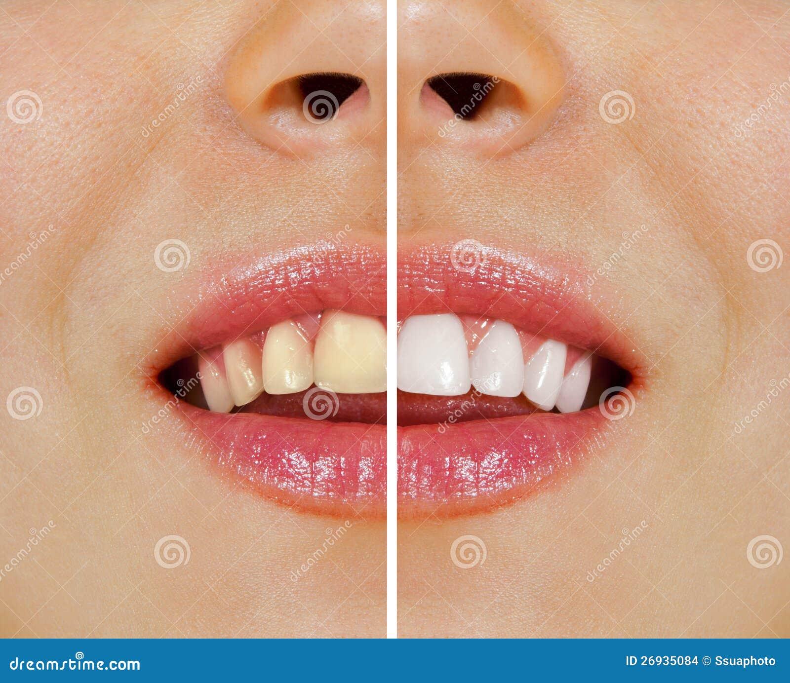 Zähne vor und nach dem Weiß werden