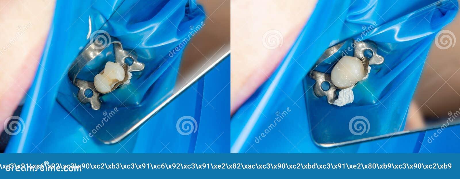 Zähne während der Behandlungsnahaufnahme in einer zahnmedizinischen Klinik Zahnmedizinisches Foto