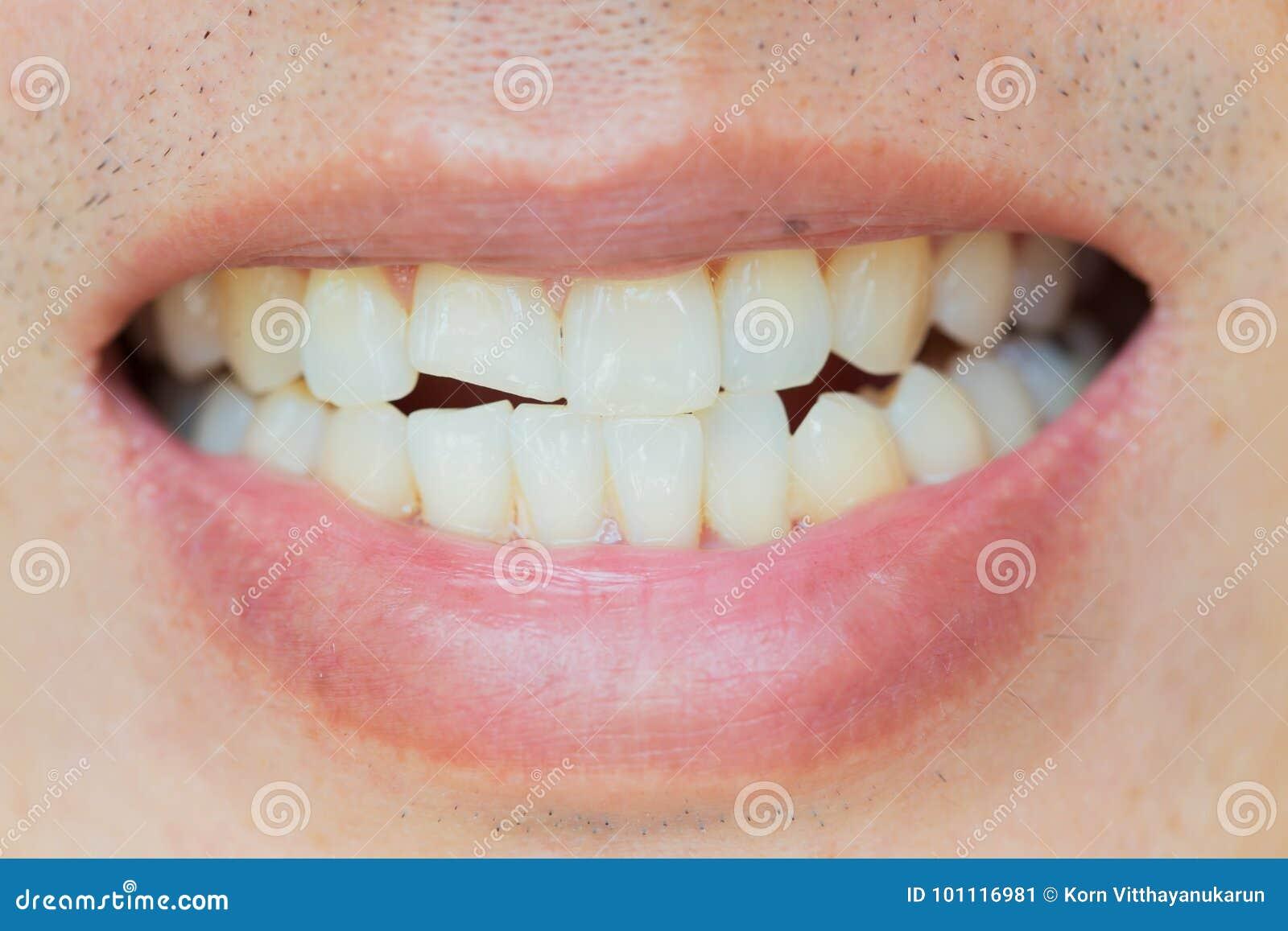 Zębów urazy lub zęby Łama w samiec Uraz i nerw szkoda zdradzony ząb
