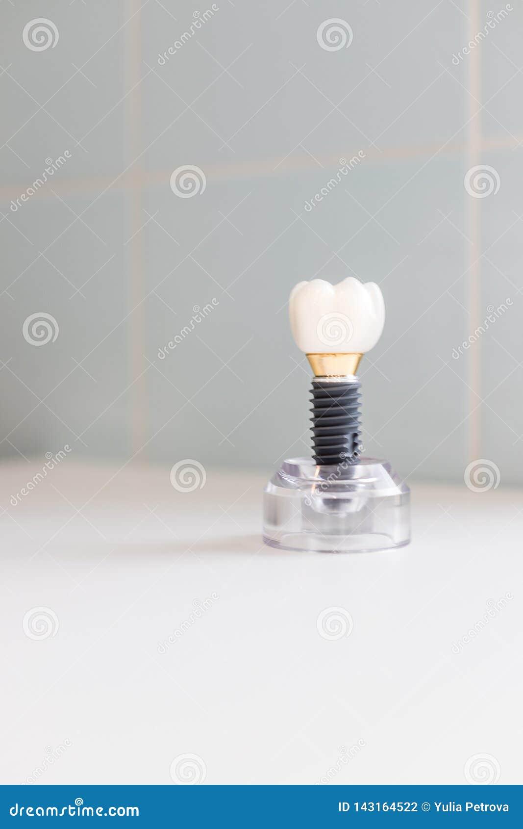 Zęby modelują pokazywać wszczep korony mostu modela Stomatologiczny przemysł Stomatologiczny wszczep lub endosseous ząb protetycz
