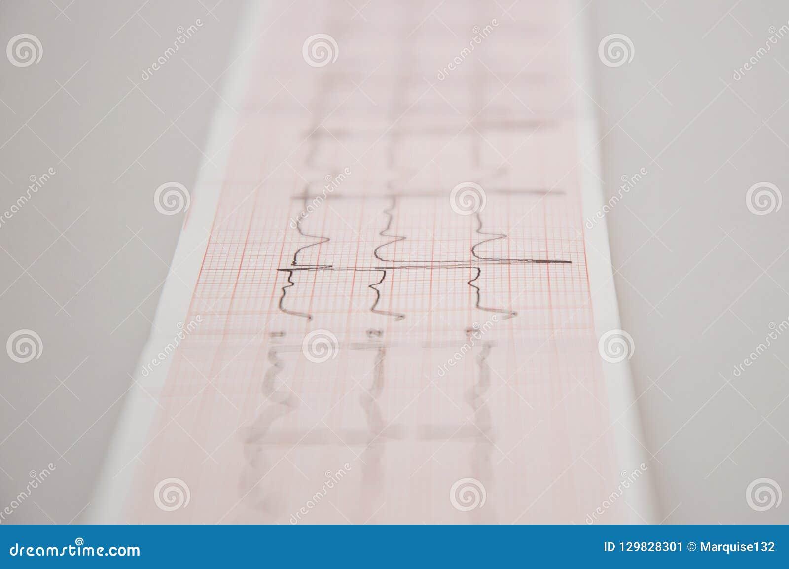 Z bliska badania lekarskie ECG taśma z łagodnym arrhythmia