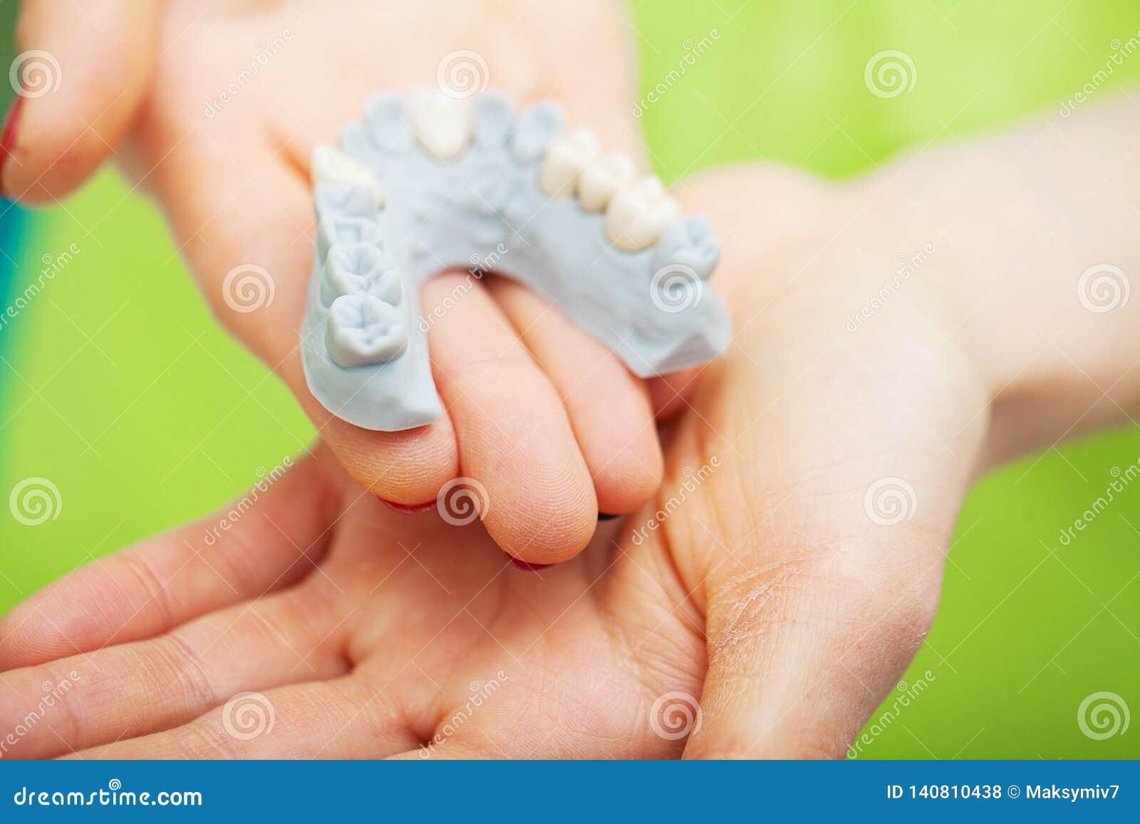 Zahnarzthandholding des Kiefermodells der Zähne und der Reinigung zahnmedizinisch mit zahnmedizinischem Werkzeug Technische Schüs