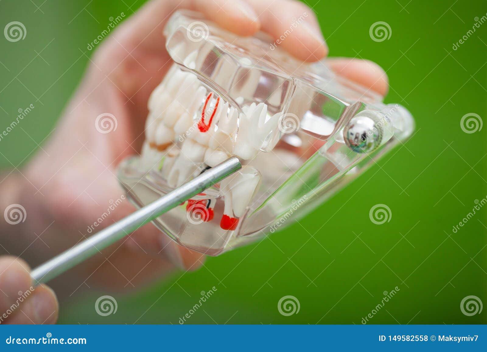 Zahnarzthandholding des Kiefermodells der Z?hne und der Reinigung zahnmedizinisch mit zahnmedizinischem Werkzeug