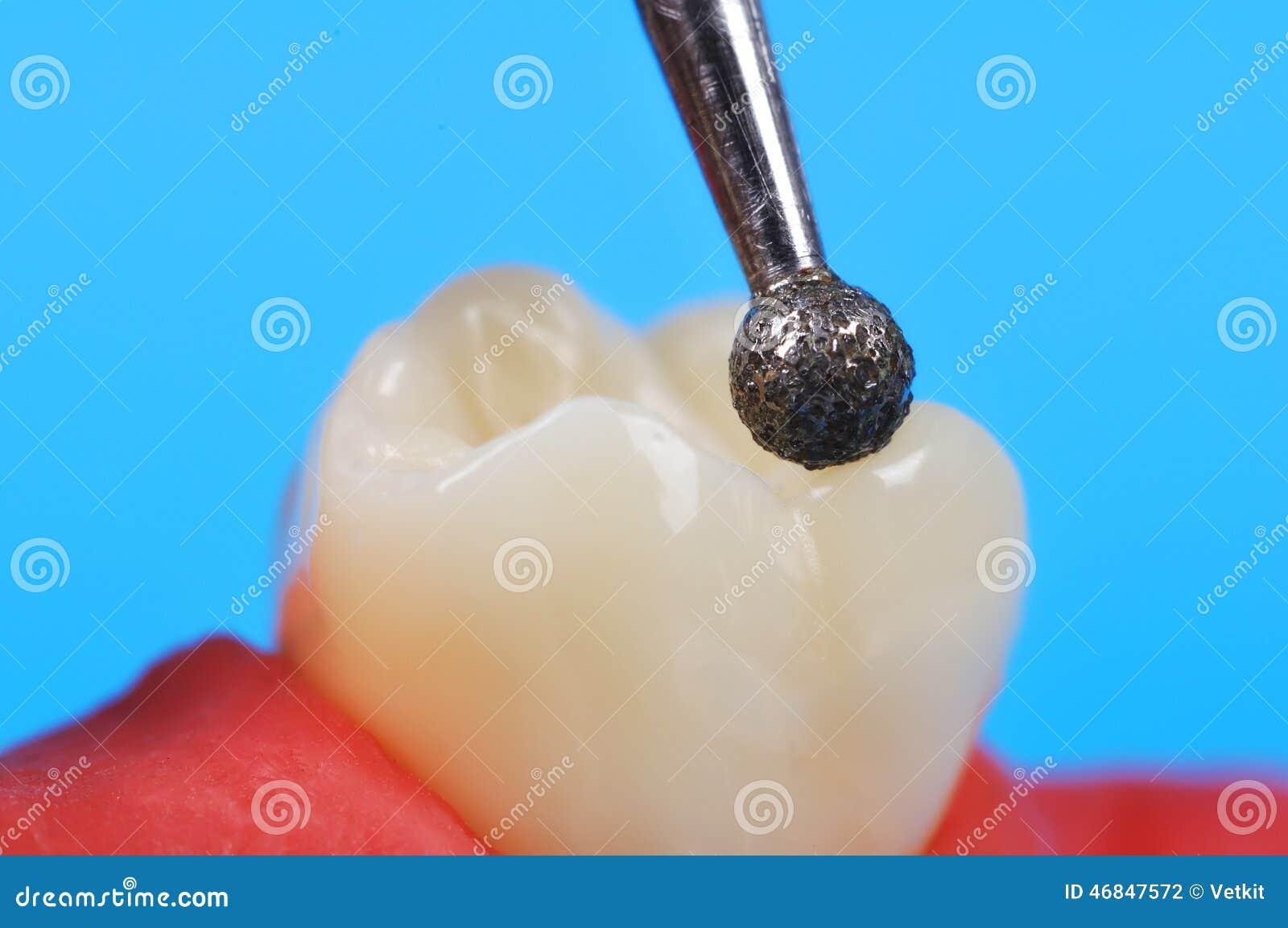 Zahnbohrer und Zahn