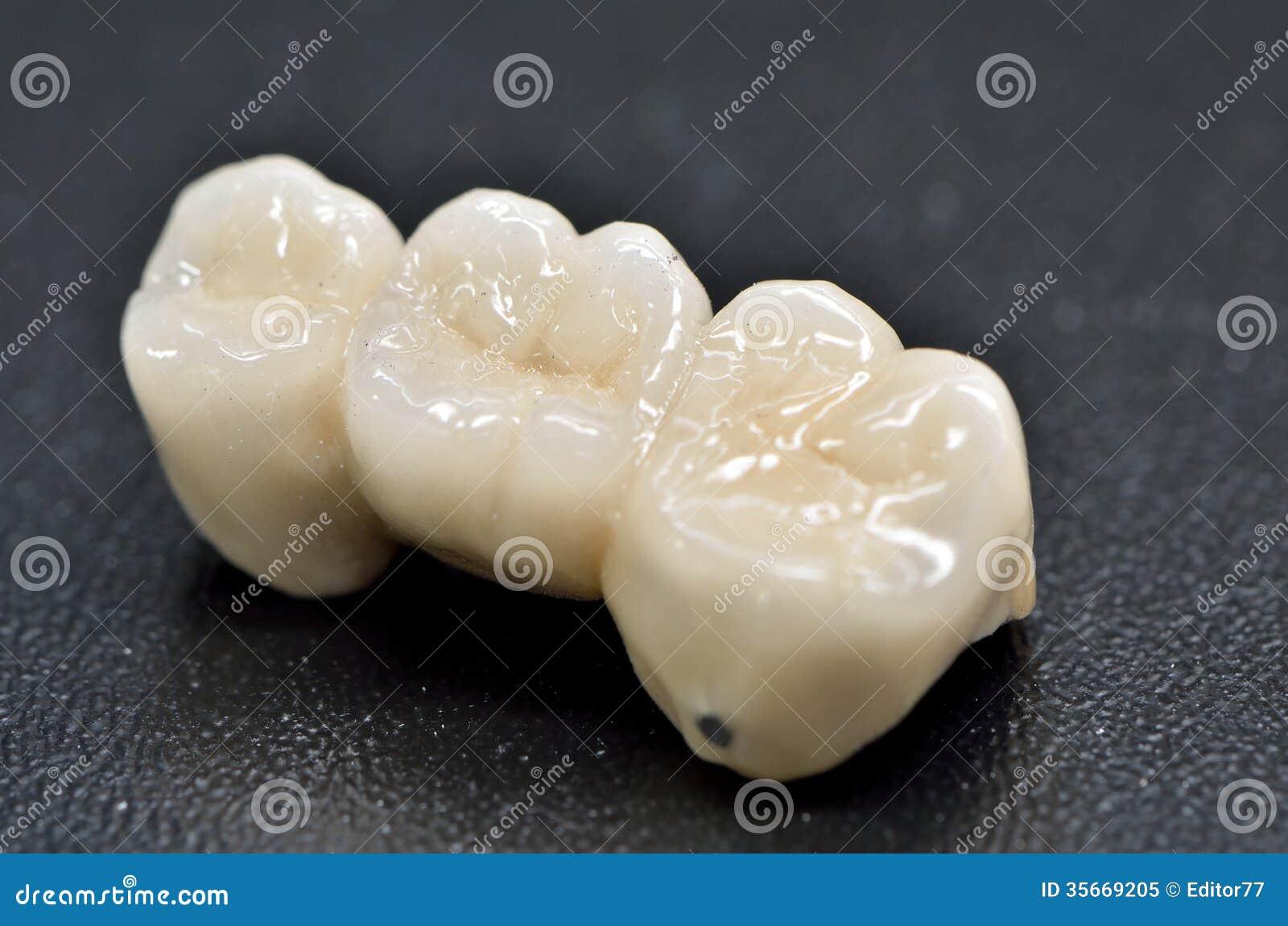 Zahnmedizinische Krone des Porzellans
