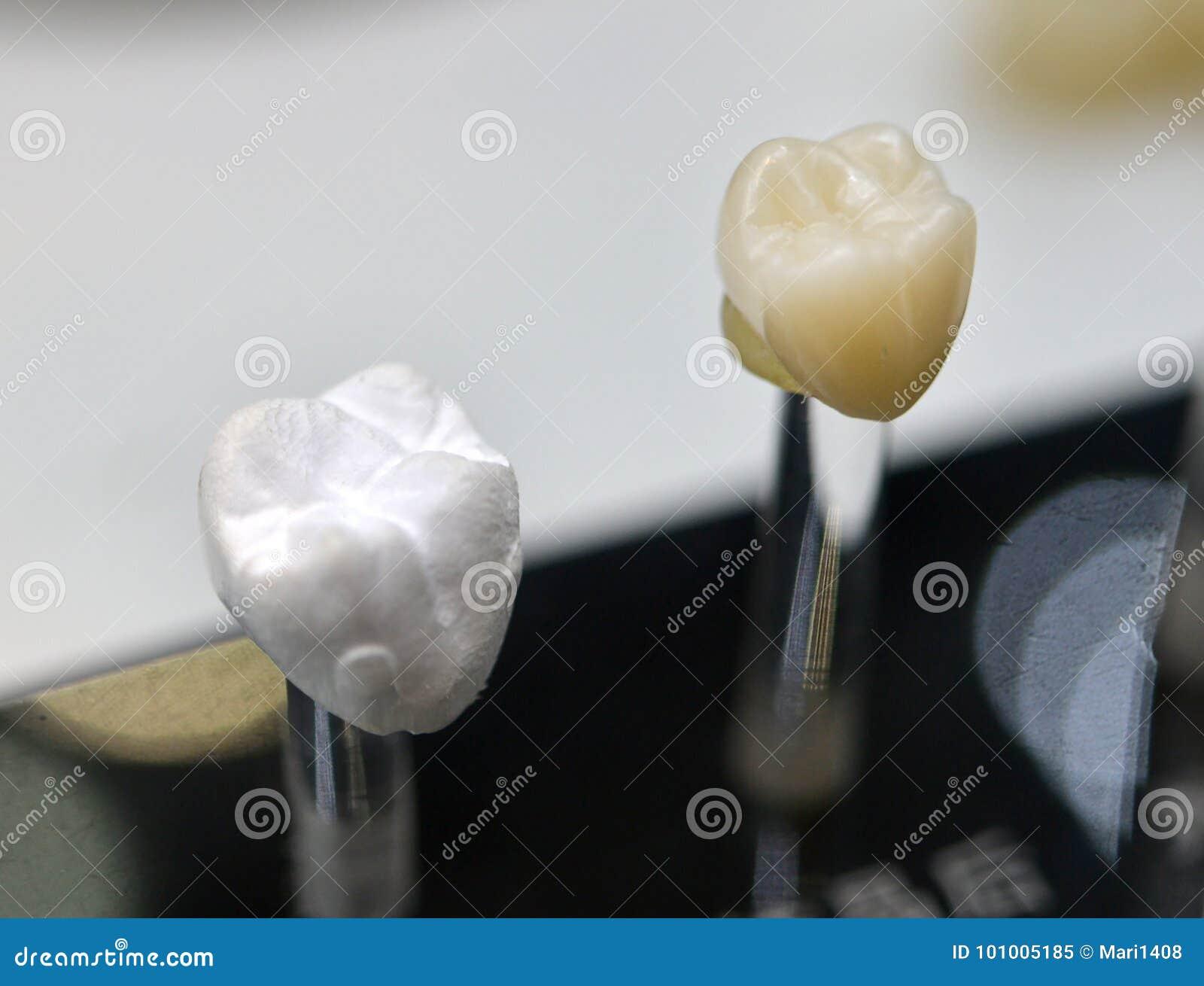 Zahnmedizinische Kronennahaufnahme
