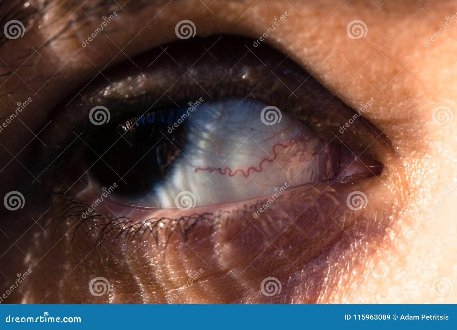 Zamyka up oko z czerwoną żyłą