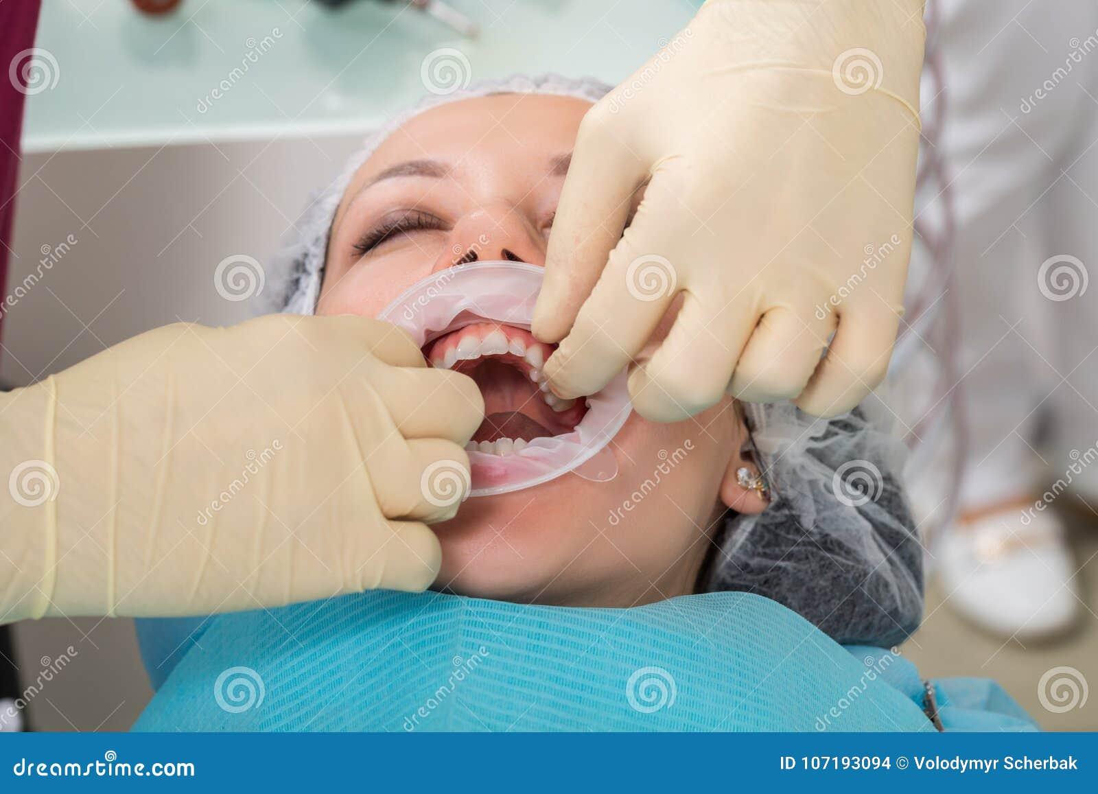 Zamyka w górę procesu narządzanie i instalować stomatologiczną ceramiczną koronę Męski fachowy dentysta pomaga taktować zęby kobi