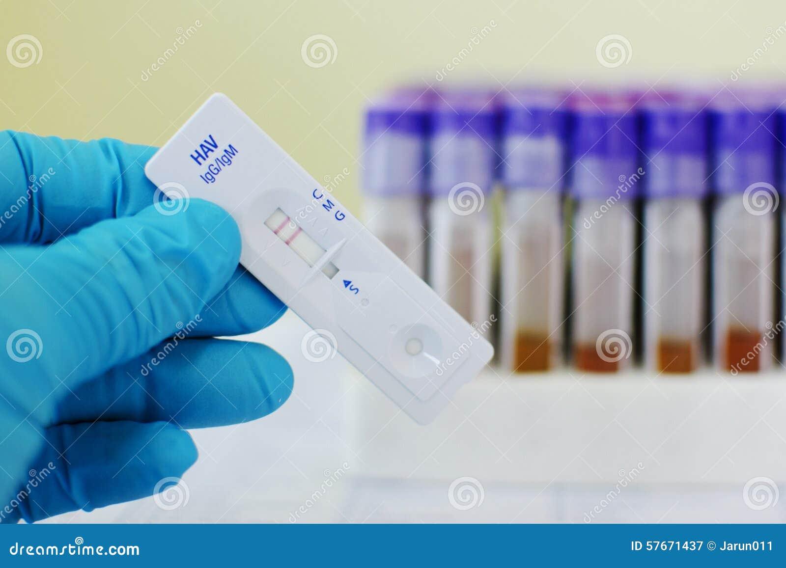 Zapalenia wątroby A wirusa pozytyw