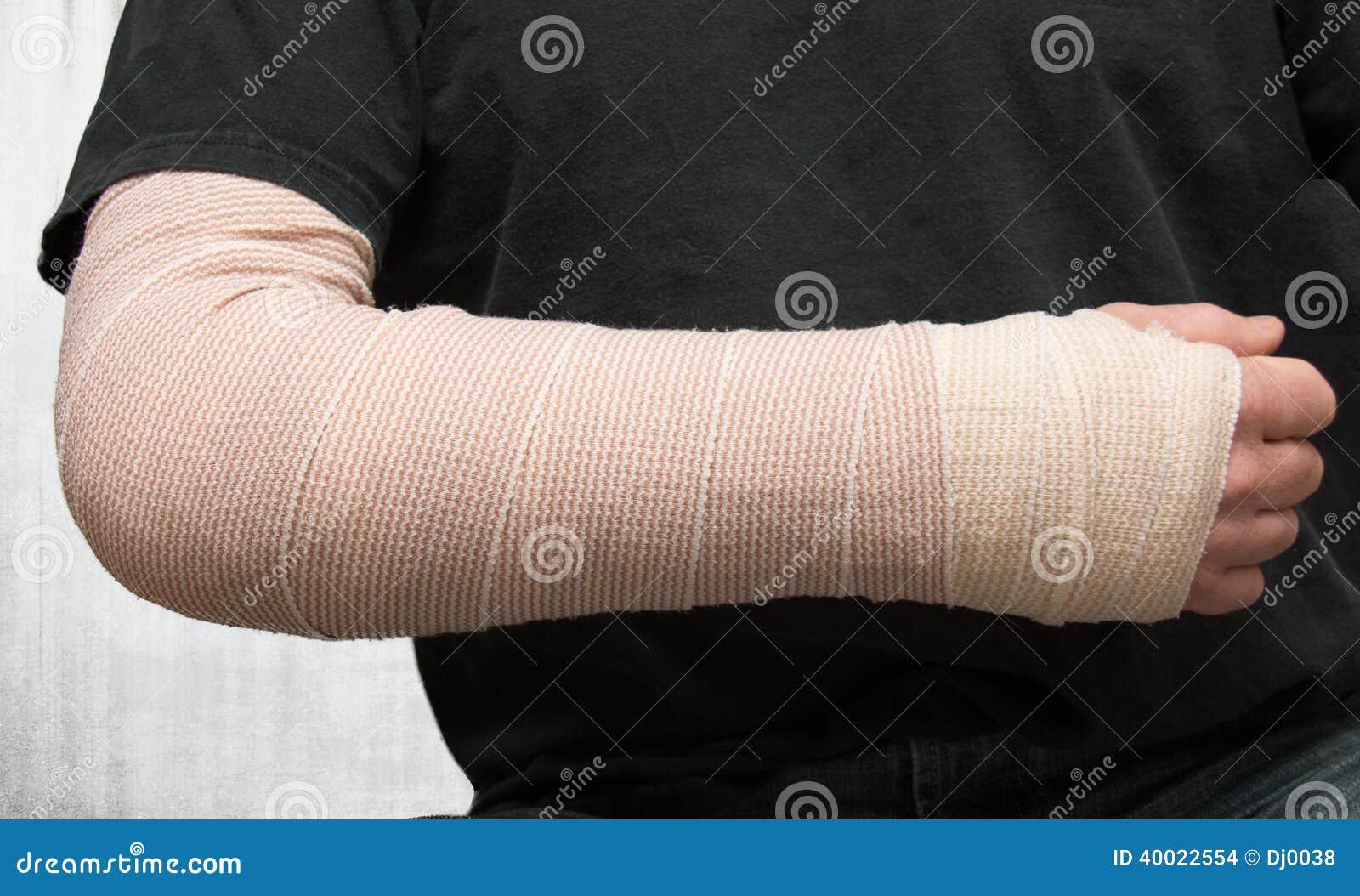 Zdradzona ręka