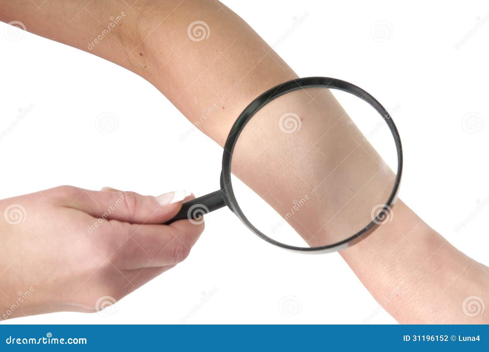 Zdrowy skóra czek