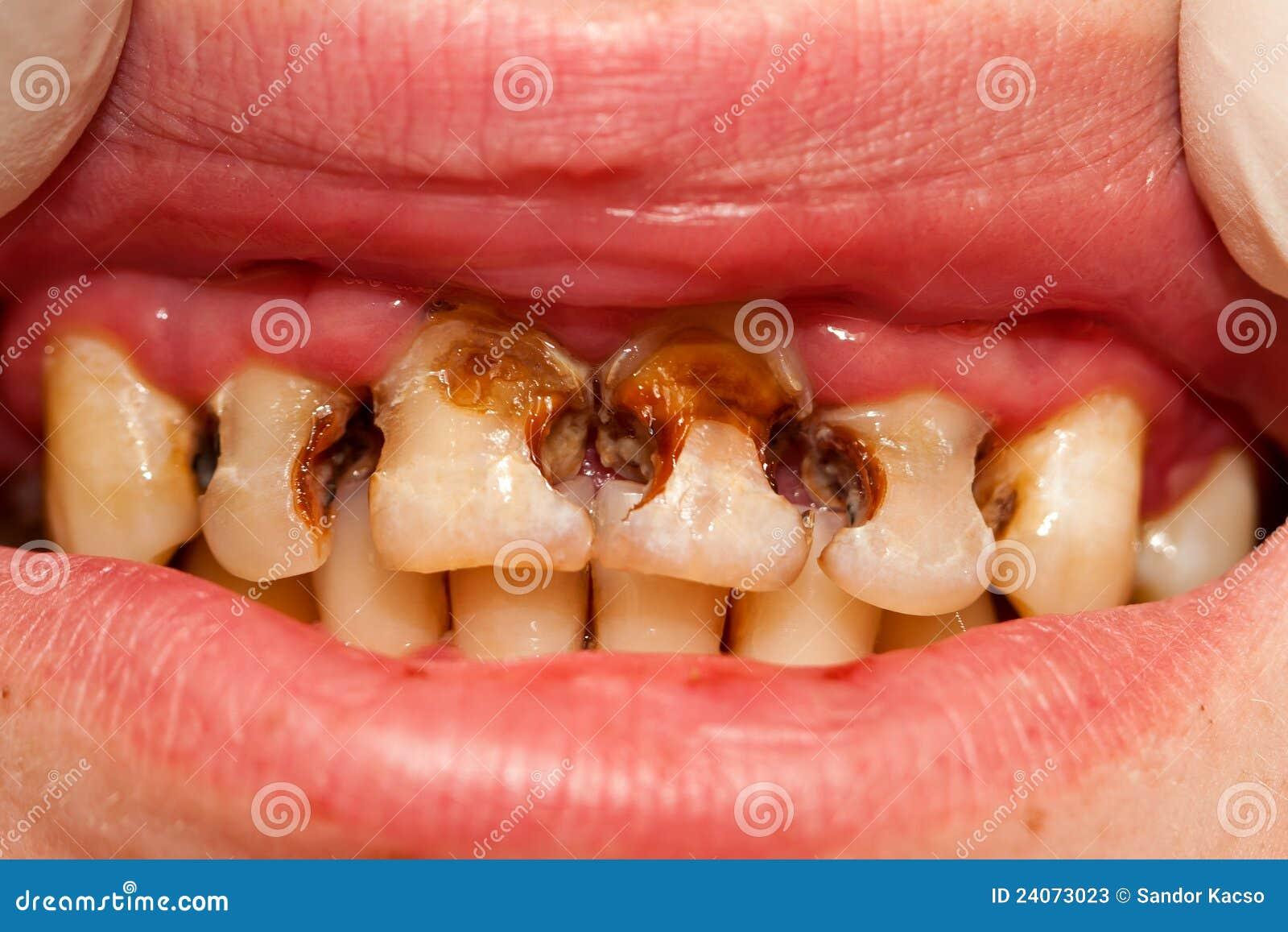 Erfreut Zahnanatomie Der Zähne Bilder - Physiologie Von Menschlichen ...
