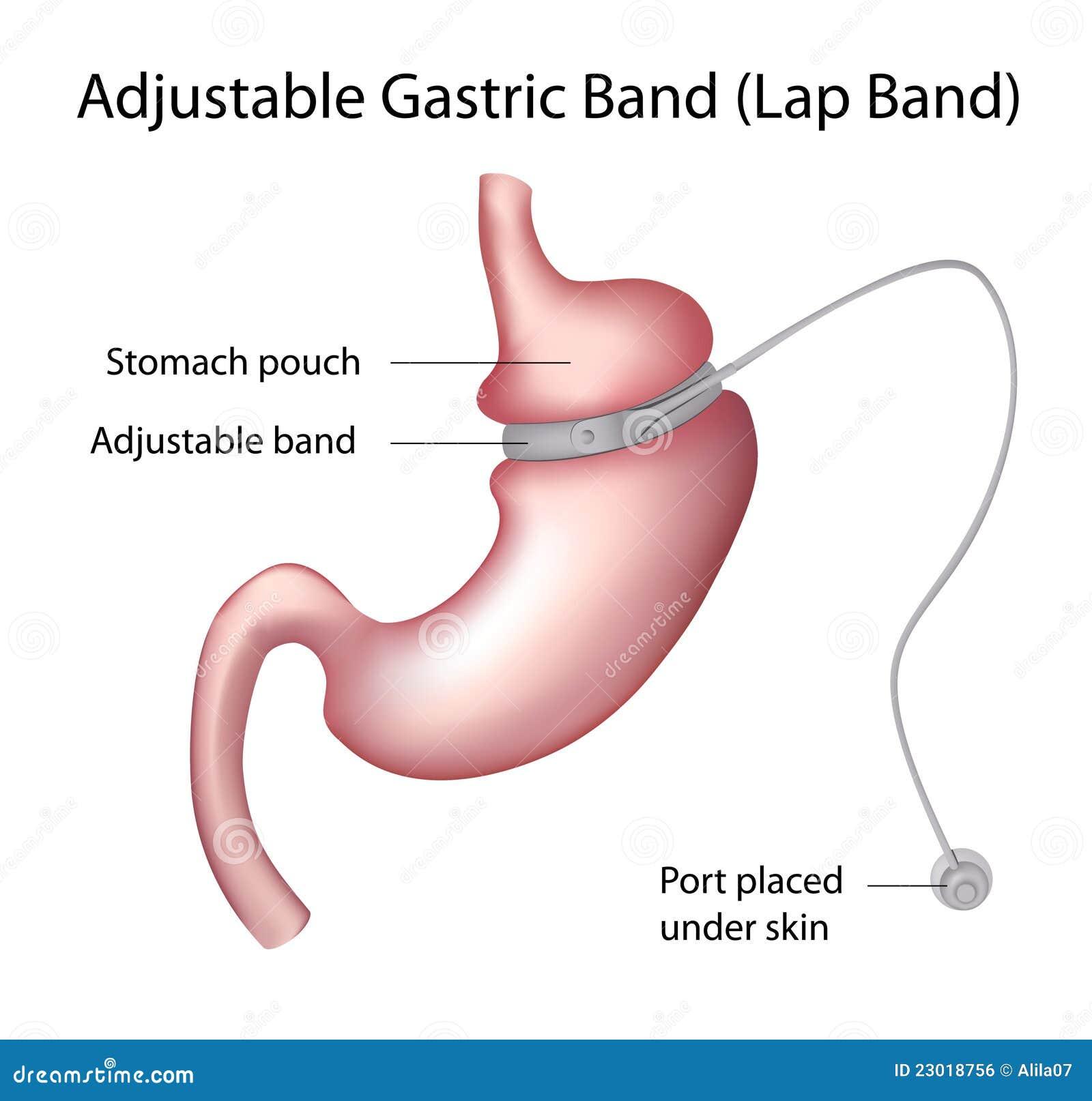 Zespołu żołądkowy straty operaci ciężar