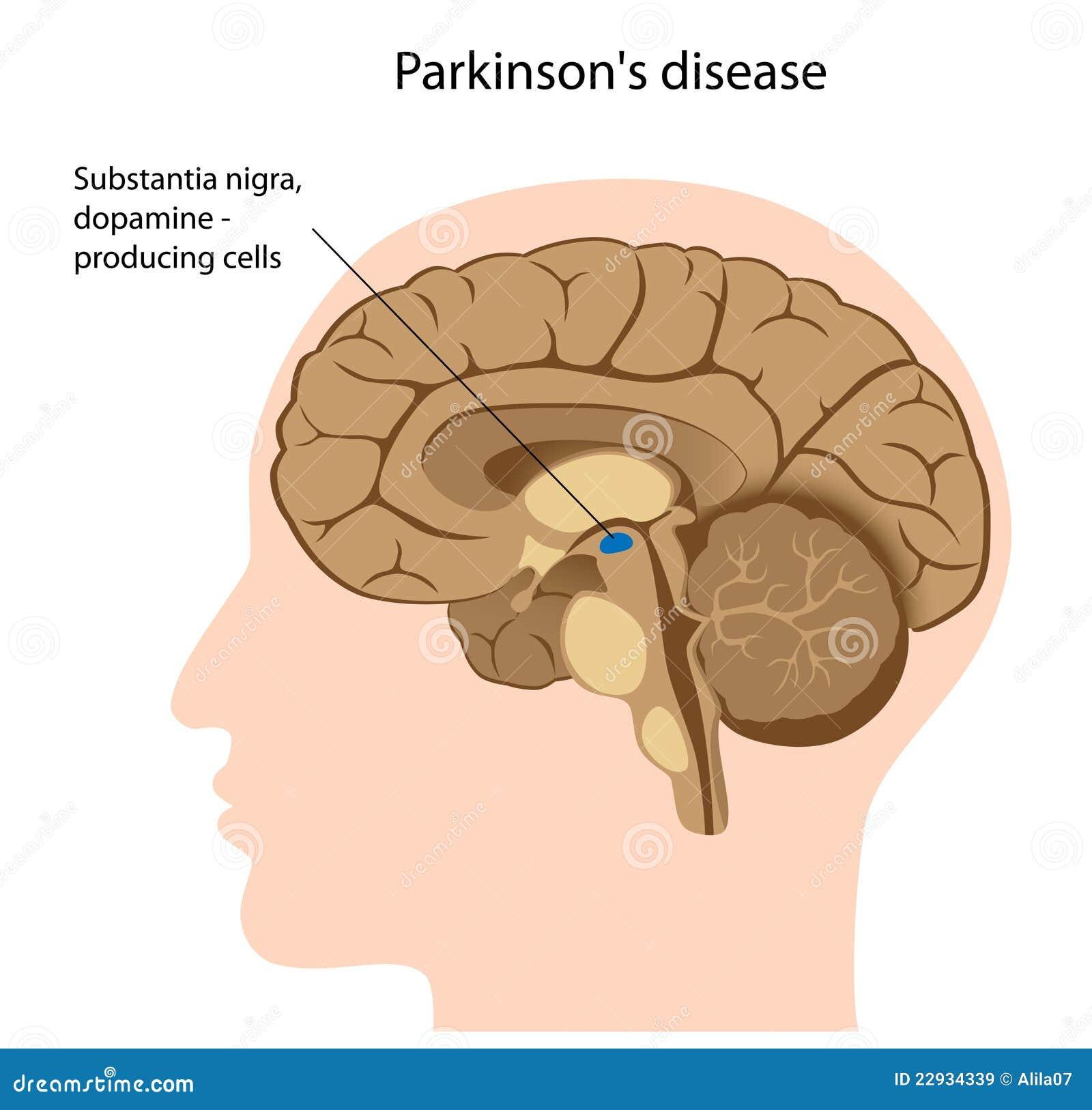 Ziekte van Parkinson
