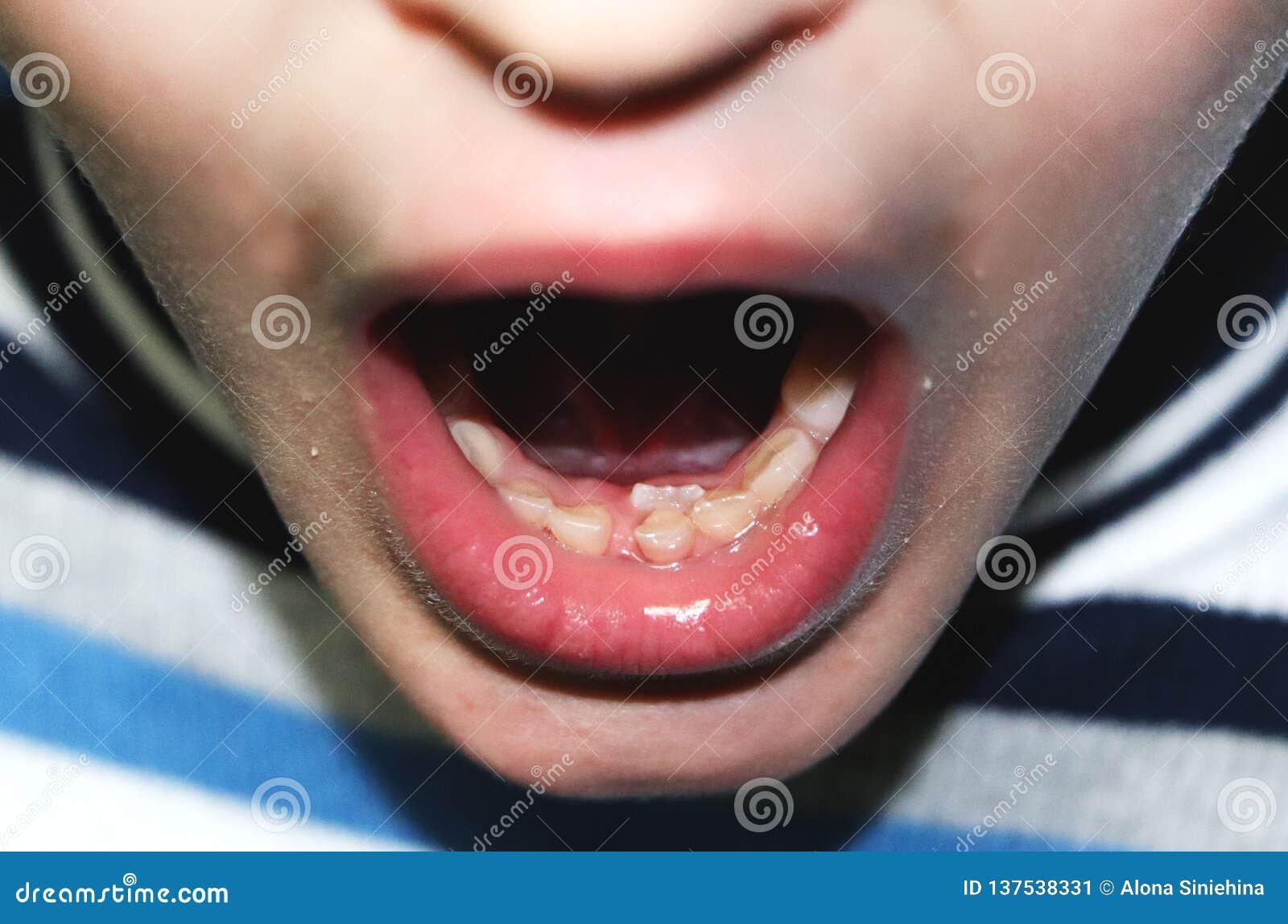 Zmieniać dojnych zęby Ustawiam zęby boy's dojni zęby mimo to spada za ale miejscowy,
