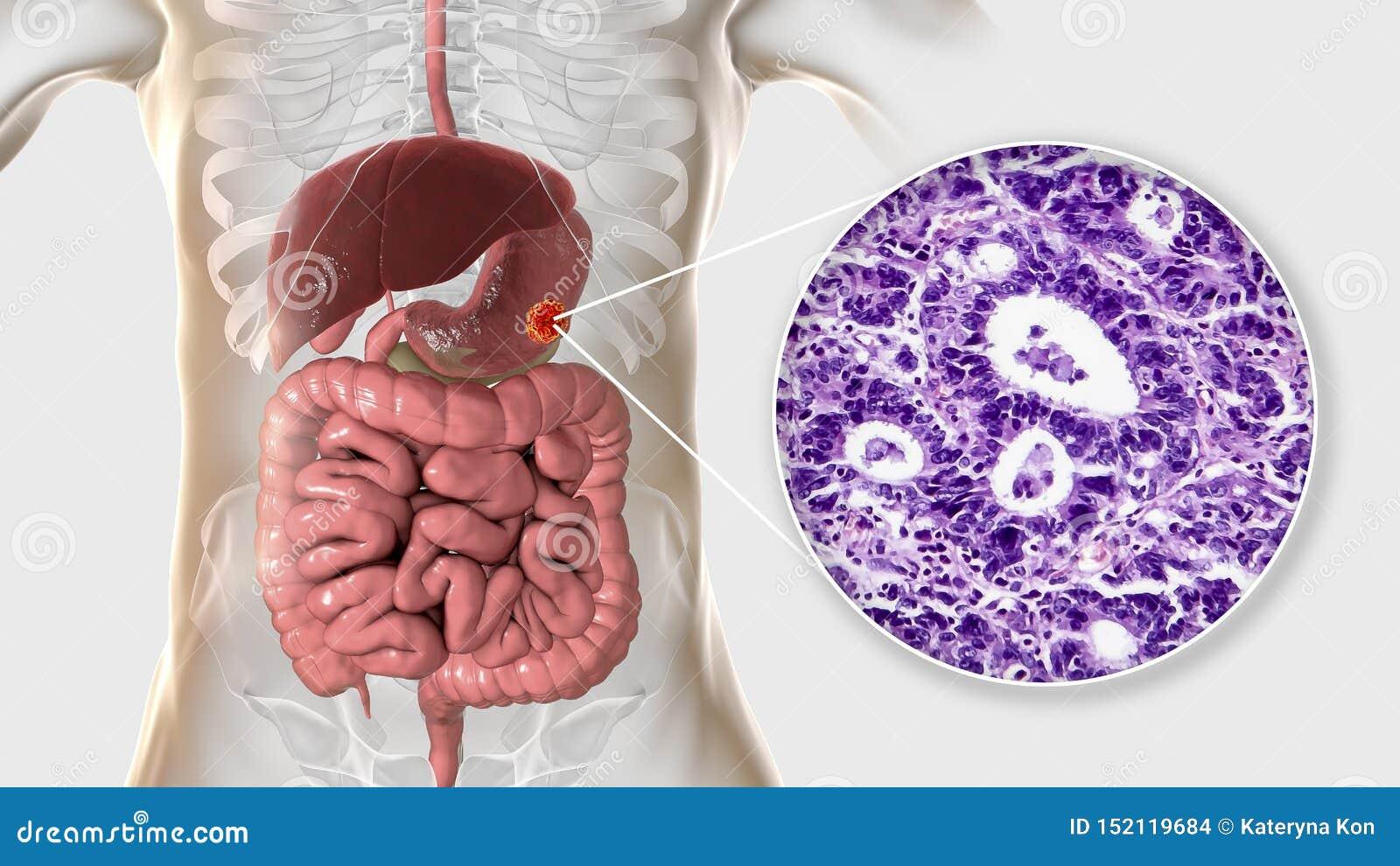 Znosi adenocarcinoma i zaświeca micrograph, żołądkowy nowotwór, ilustracja