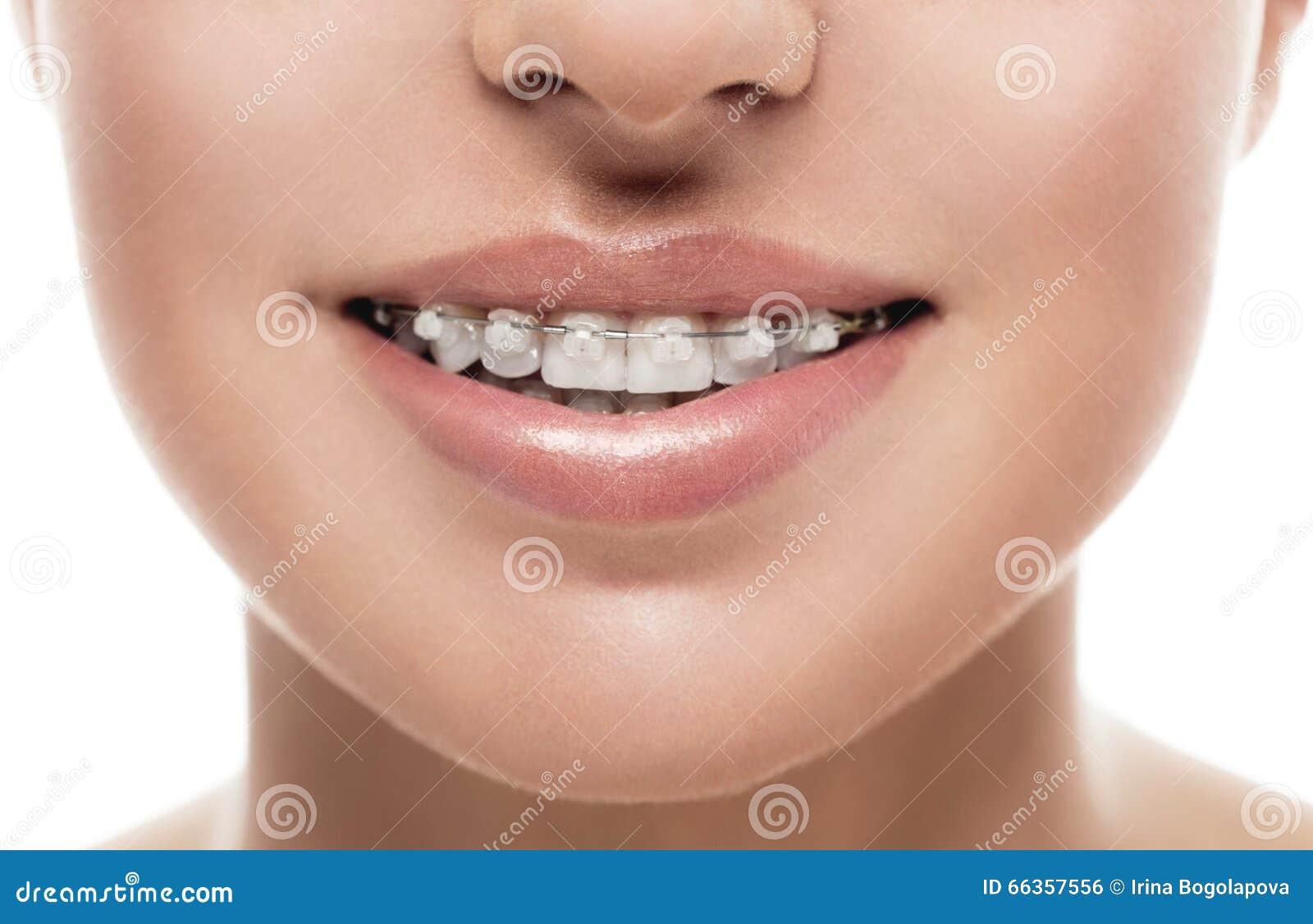 Związuje zębu usta orthodontics kobiety